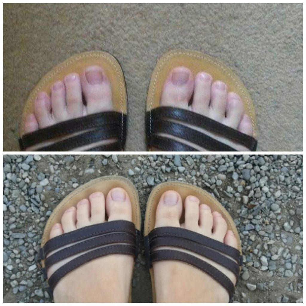 rozdiel-po-troch-rokoch-barefoot