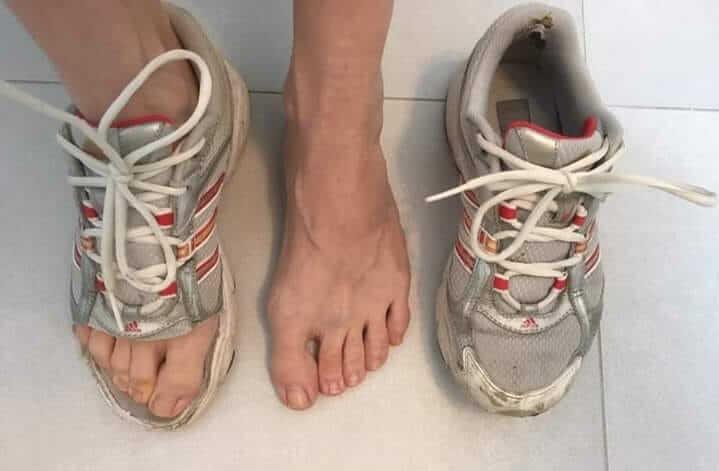 Ako sú nohy deformované v klasickej obuvi?